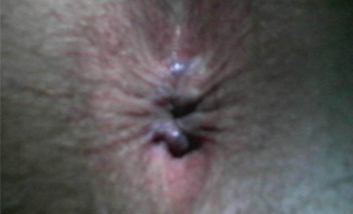After hemorrhoid surgery pictures
