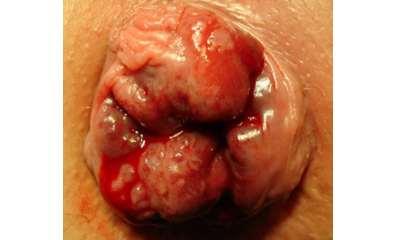 Bleeding hemorrhoids photos