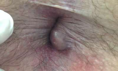 External hemorrhoids images
