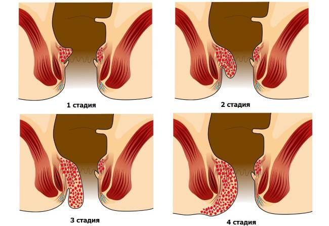Initial hemorrhoid stages photo