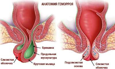 Female hemorrhoids pics