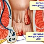 Images of thrombosed hemorrhoids