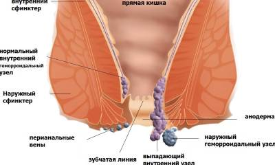 What are the symptoms of hemorrhoids
