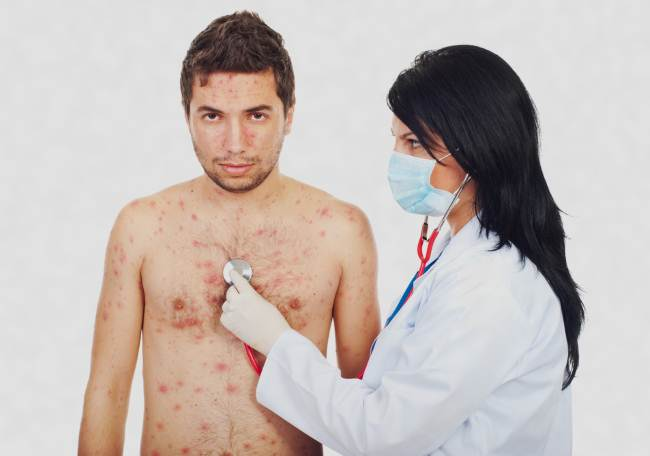 Chicken pox pictures in adults