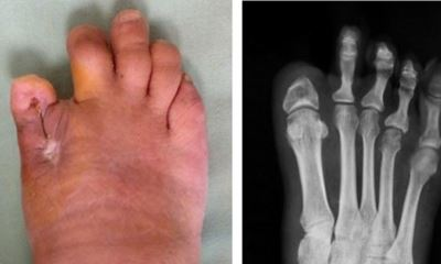 Big toe amputation pictures
