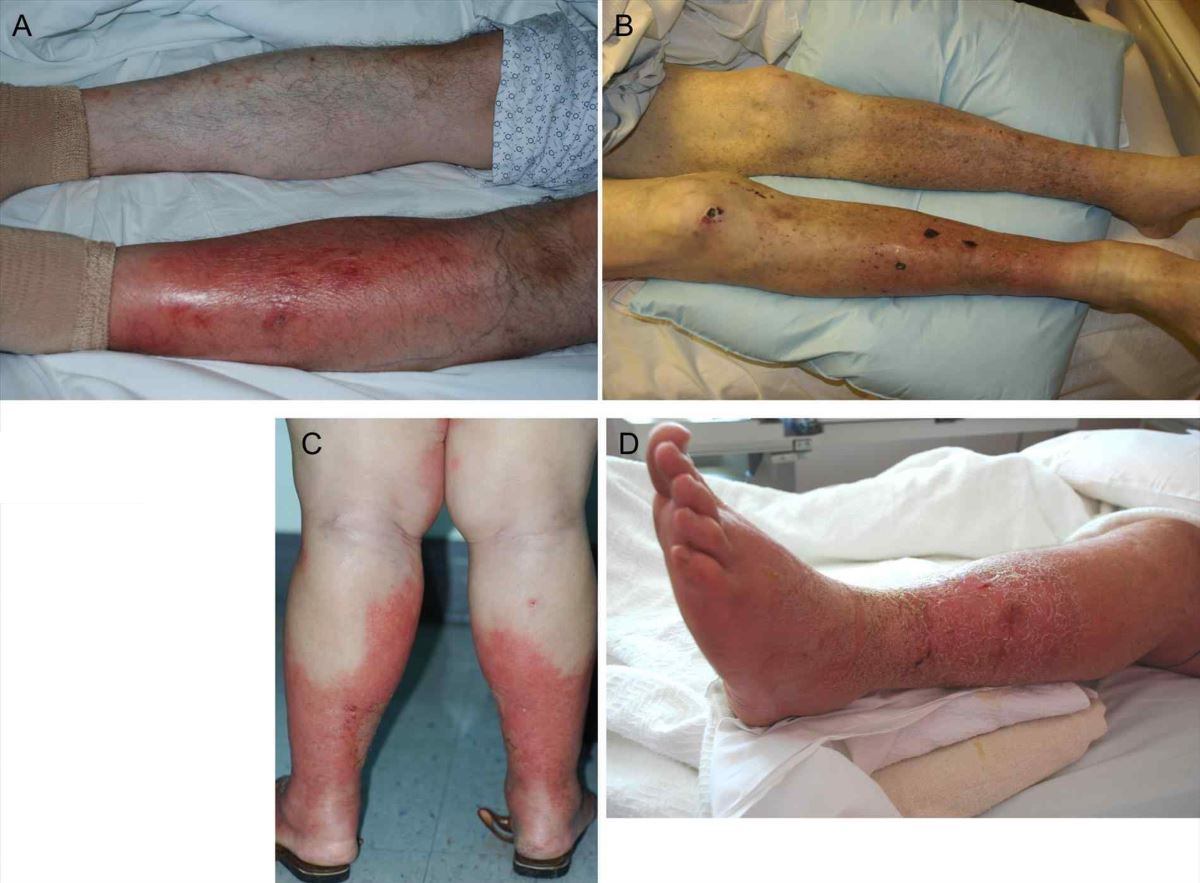 Diabetic dermopathy pictures 1