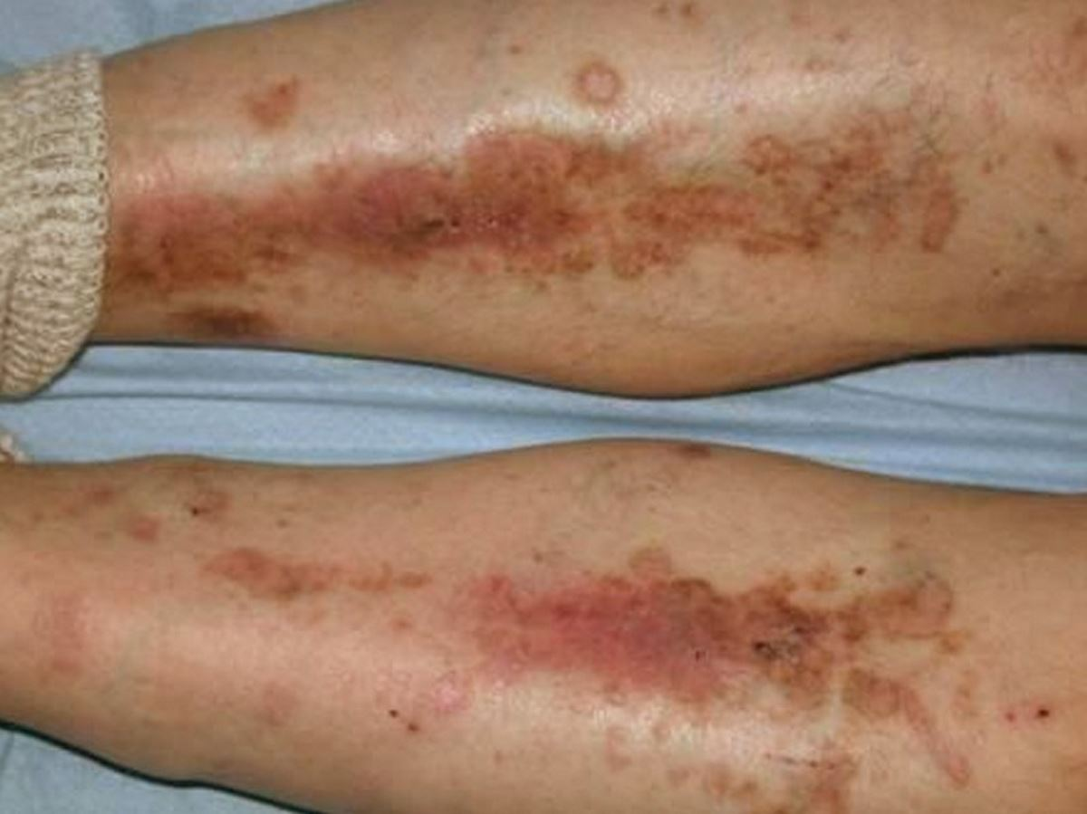 Diabetic dry skin on legs pictures 1