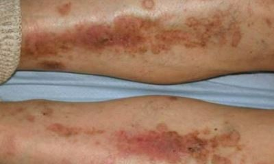 Diabetic dry skin on legs pictures