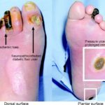 Diabetic foot ulcer pictures 1