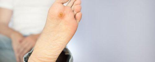 Adult Female Back (Rash, Growth, Disease) | skinsight