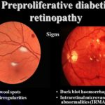 Diabetic retinopathy images