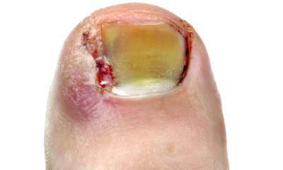 Diabetic toenails pictures