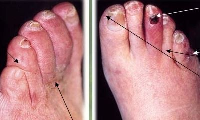 Diabetic toes pictures