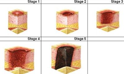 Foot ulcer stages pictures