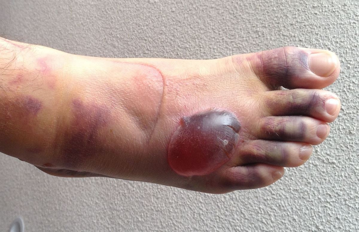 Blisters on feet pictures