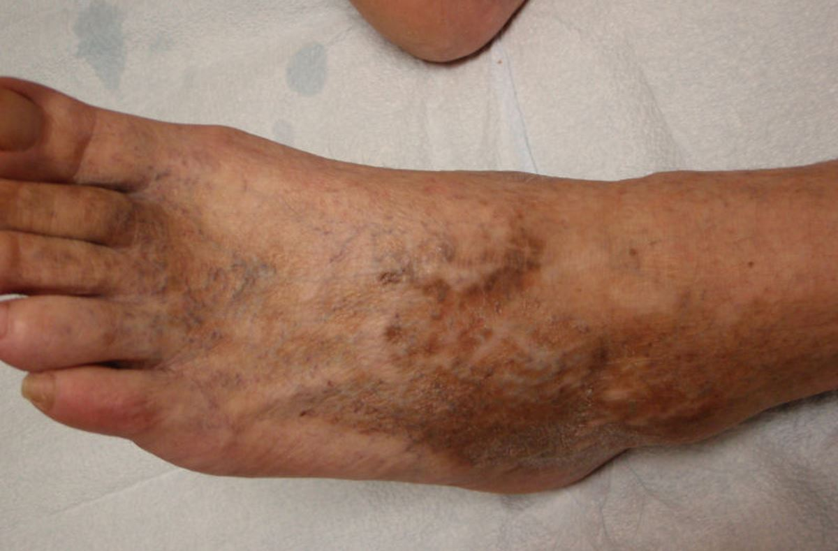 Brown spots on top of feet pictures