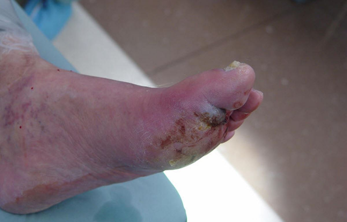 Diabetes feet symptoms pictures