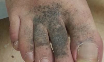 Diabetic foot discoloration pictures 2