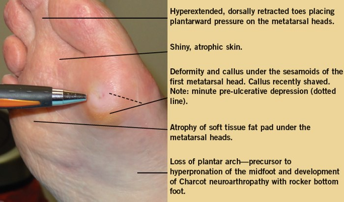 Diabetic foot problems pictures 1