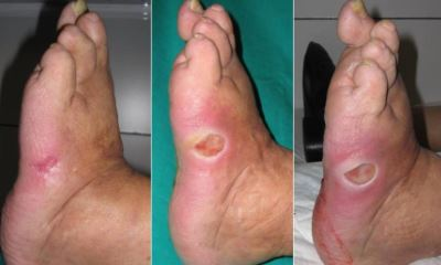 Diabetic foot sores pictures 3