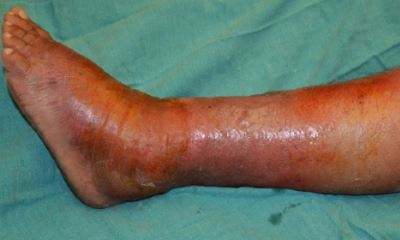 Diabetic legs pictures 3