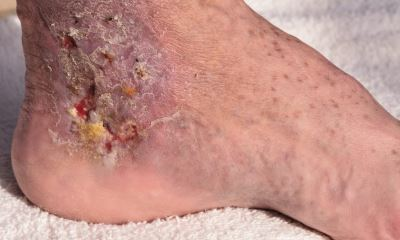 Diabetic sores on feet pictures 6
