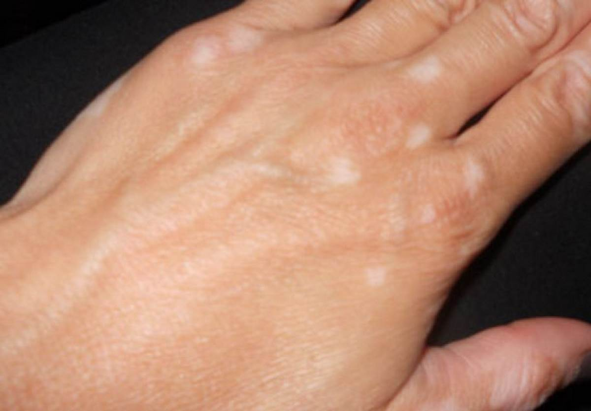 Early vitiligo on hands pictures