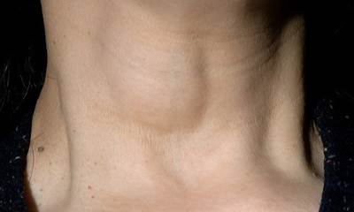 Edema of neck pictures 7