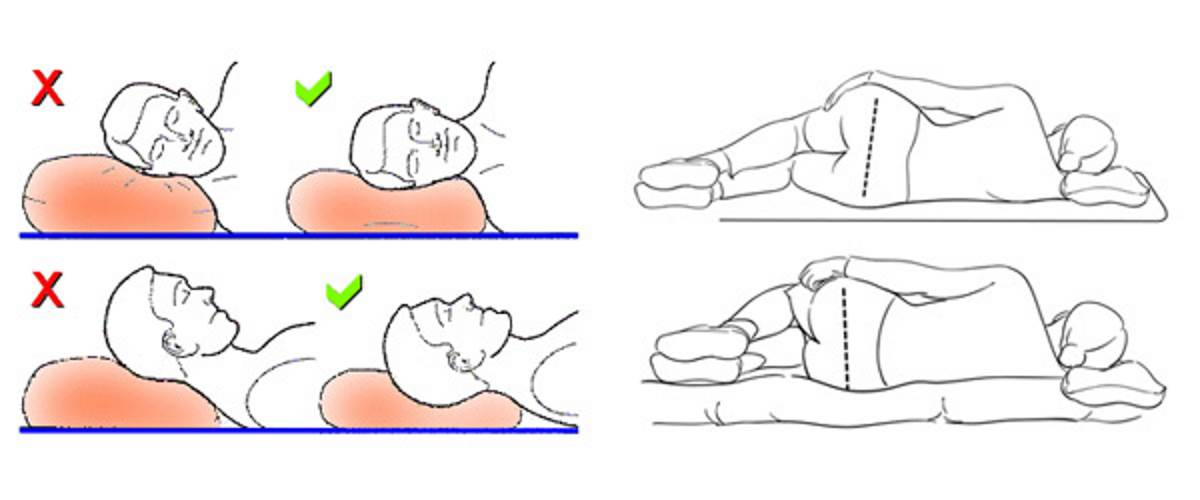 How to sleep with cervical osteochondrosis pictures