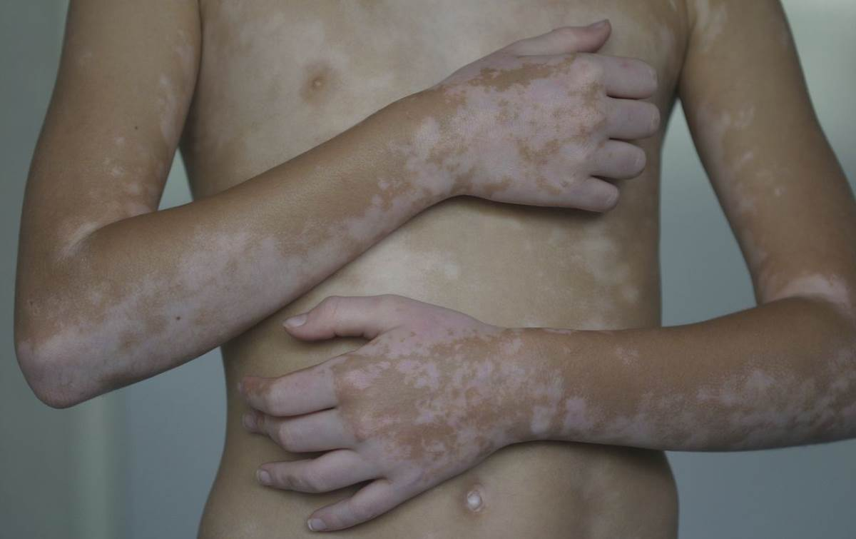 Signs of vitiligo images