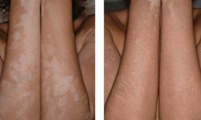 Treatment for vitiligo pictures before and after 7