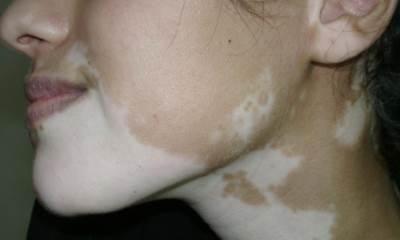 Vitiligo disease pictures 6