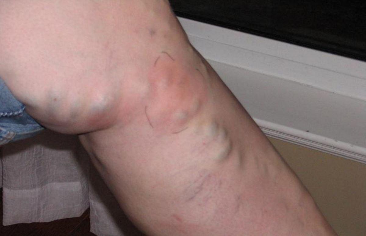 DVT blood clot symptoms pictures