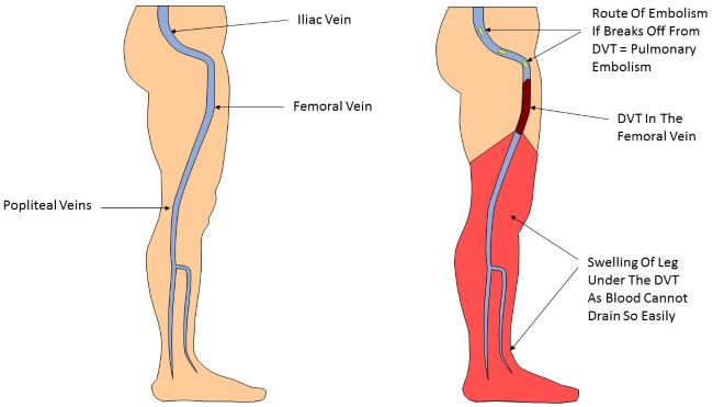 Deep vein thrombosis pictures 1