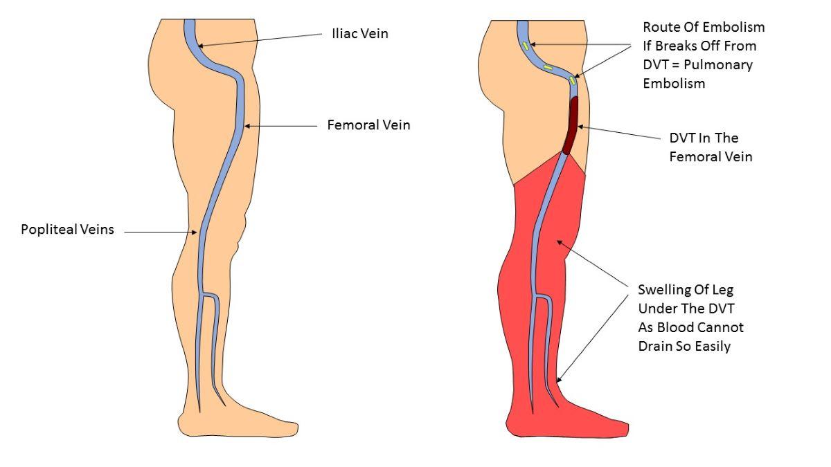 Deep vein thrombosis pictures