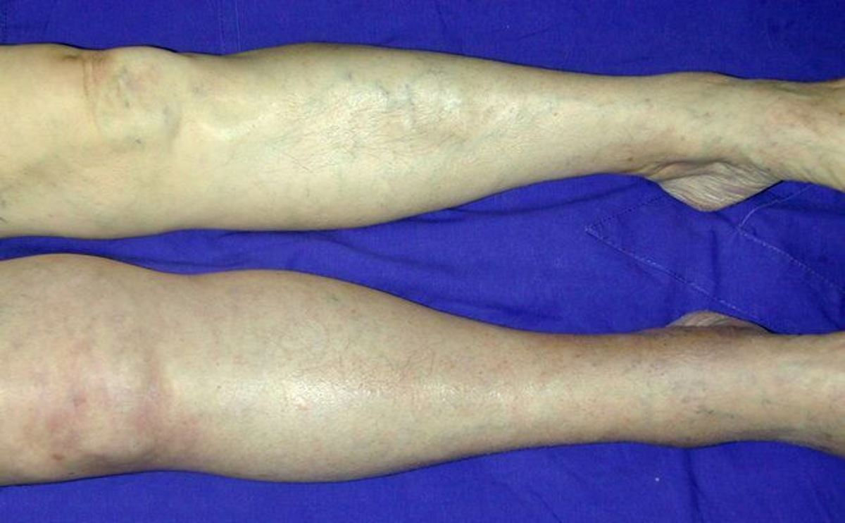 Deep vein thrombosis symptoms leg pictures