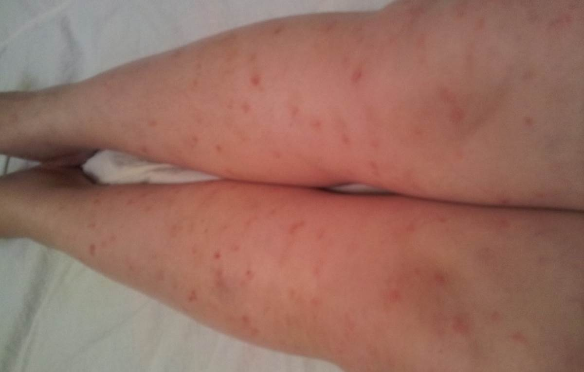 Early signs of psoriasis pictures