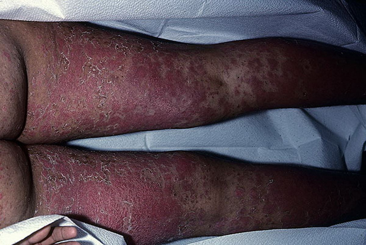 Erythrodermic psoriasis pictures 2