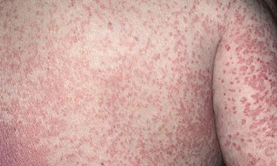 Erythrodermic psoriasis pictures 5