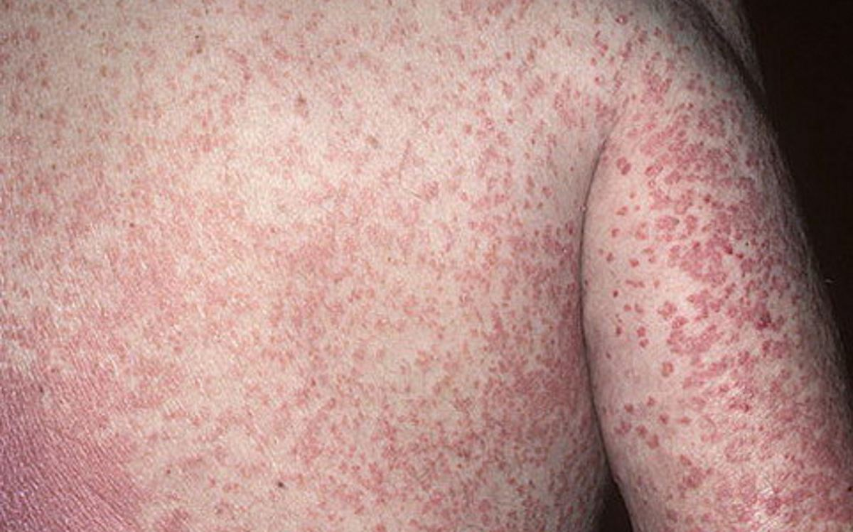 Erythrodermic psoriasis symptoms pictures