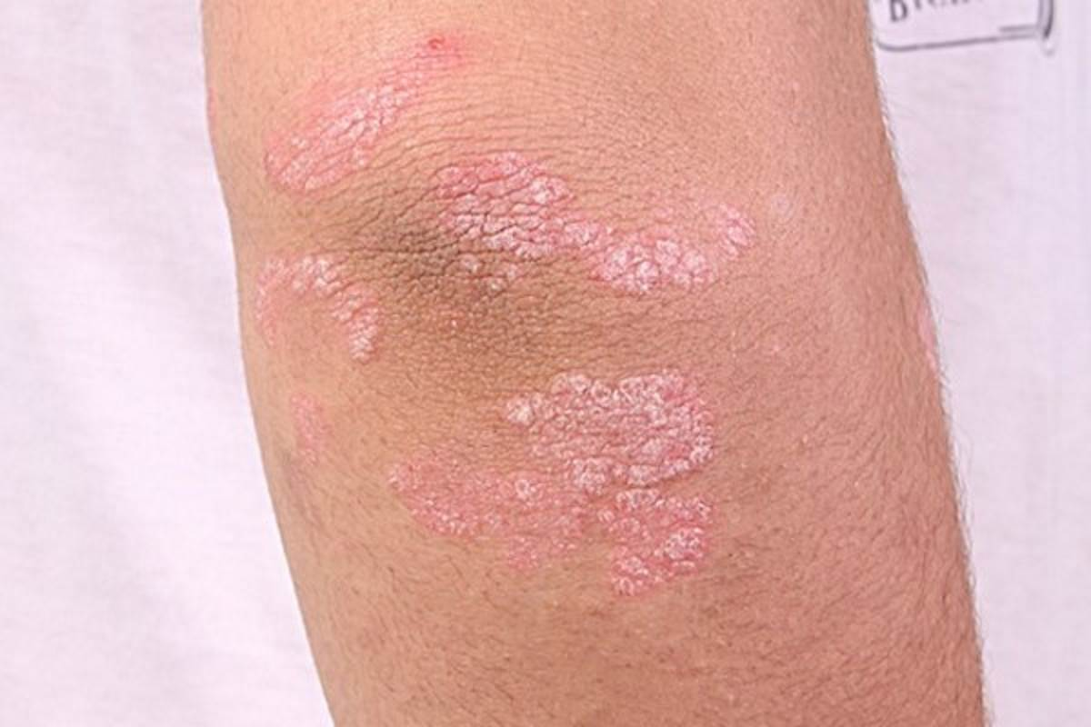 First signs of psoriasis pictures