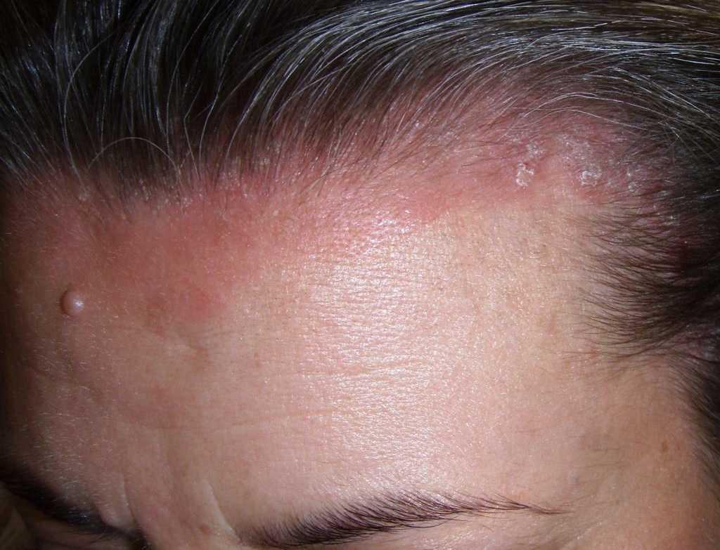 Mild scalp psoriasis pictures