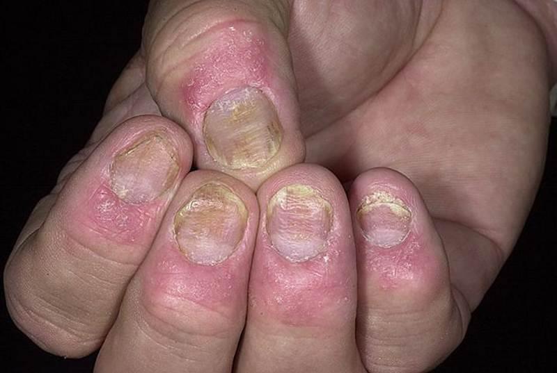 Nail psoriasis photos