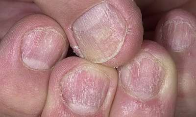 Nail psoriasis pictures 5
