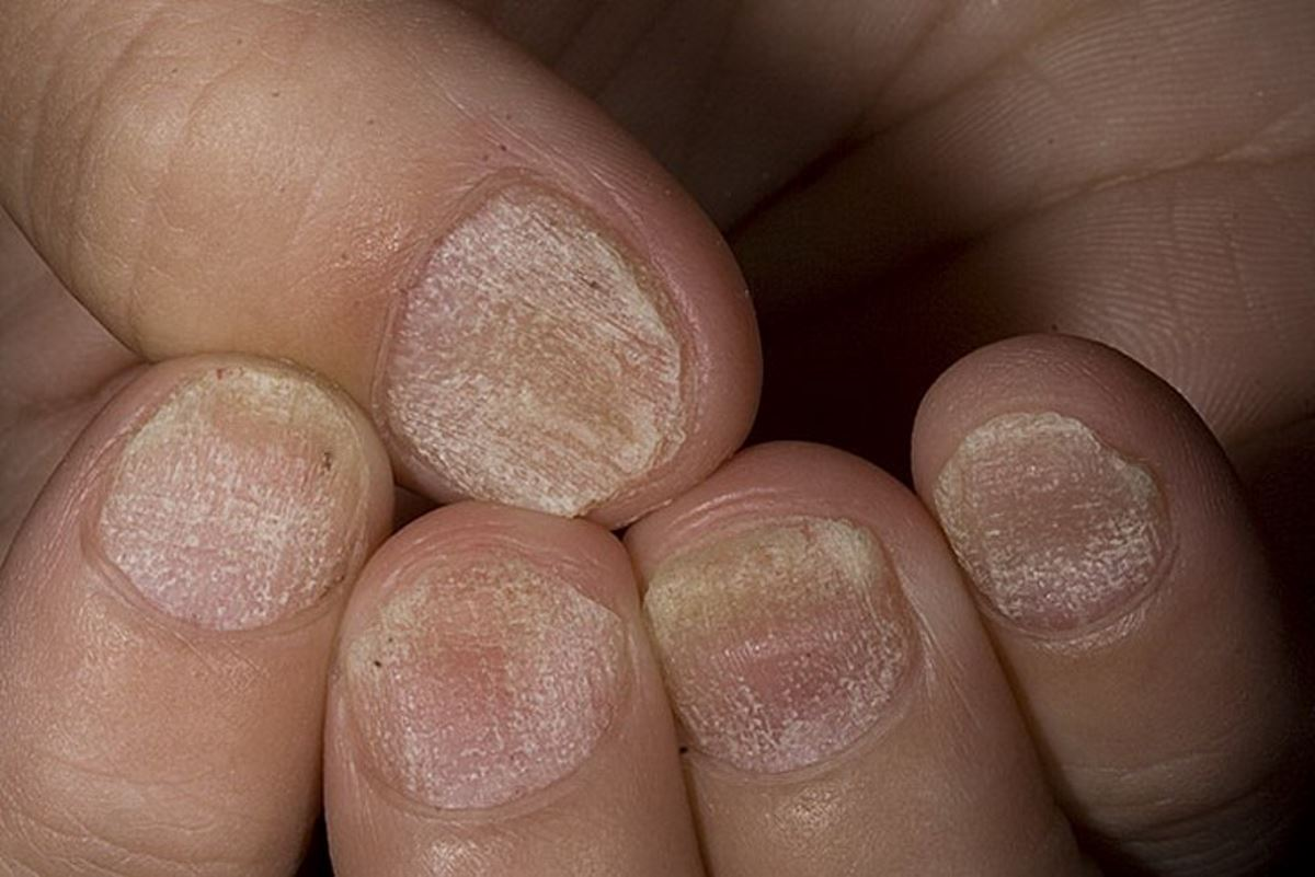 Nail psoriasis symptoms pictures