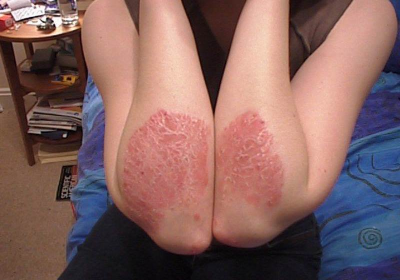 Photos of psoriasis on hands