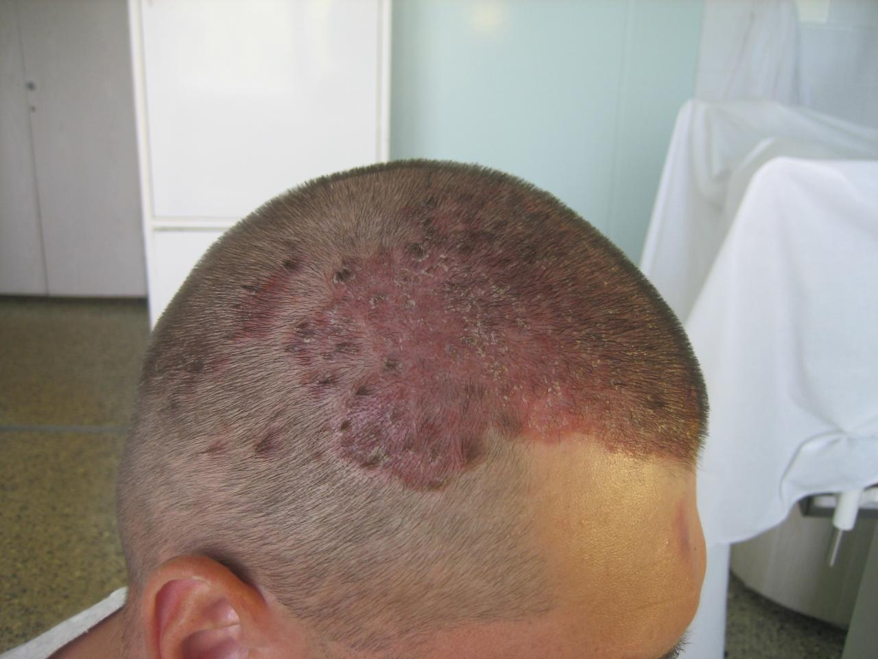 Photos of scalp psoriasis