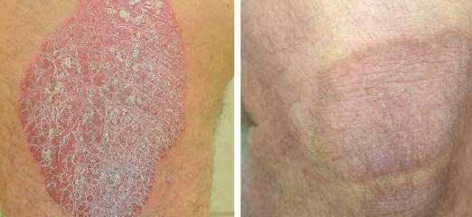 Pictures of plaque psoriasis on legs 4