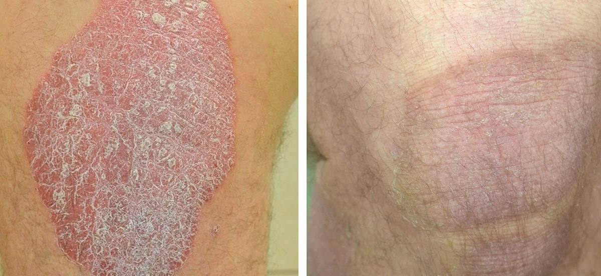 Pictures of plaque psoriasis on legs