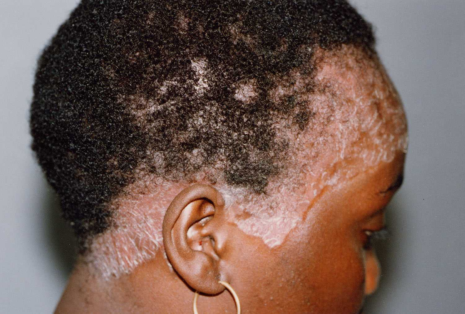 Pictures of scalp psoriasis
